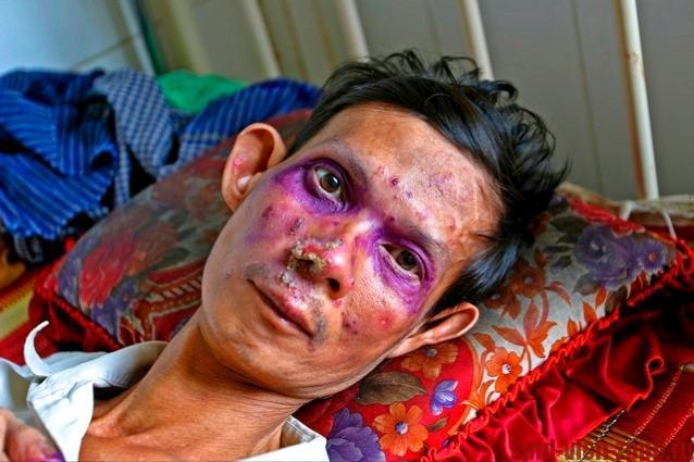 Фиолетовая, красная кожа, также говорит о поздней стадии ВИЧ-инфекции.