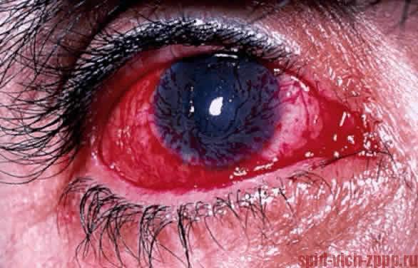 Герпесный кератит (воспаление роговицы) у больного СПИДом