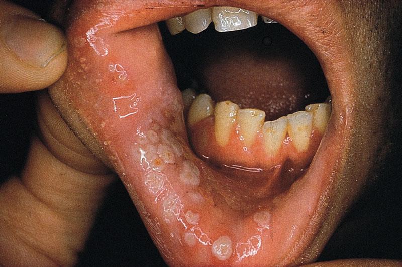 gerpeticheskaya-infekcia-rotovoy-polosti ВИЧ-инфекция, СПИД, ЗППП