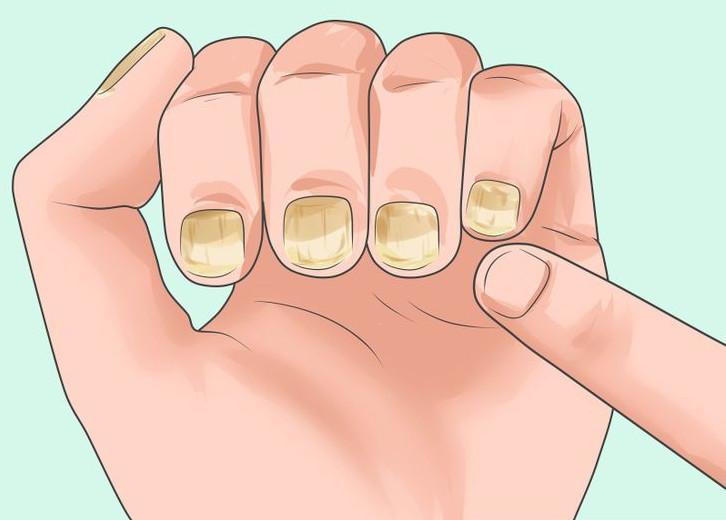 Специфические признаки ВИЧ - поражение грибком ногтей