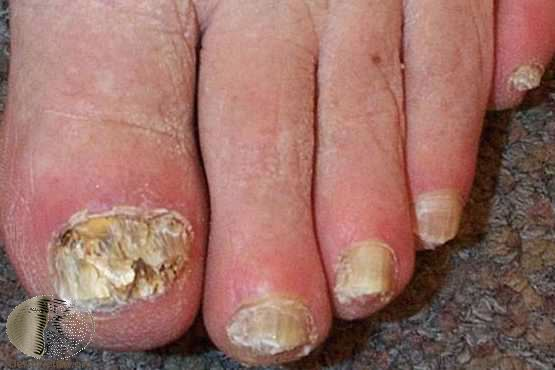 Поражение ногтей при ВИЧ-инфекции