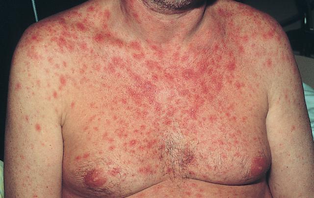 Беспорядочные пятна при ВИЧ-инфекции