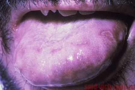 Язвы простого герпеса - проявления СПИДа во рту.
