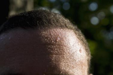Ночная потливость при ВИЧ. Лоб обильно покрыт капельками пота.